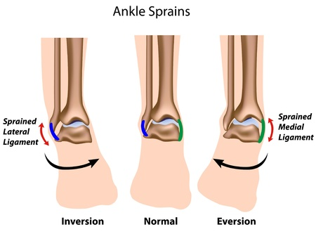 Ankle sprains Vector