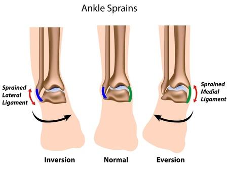 dolore ai piedi: Distorsioni della caviglia