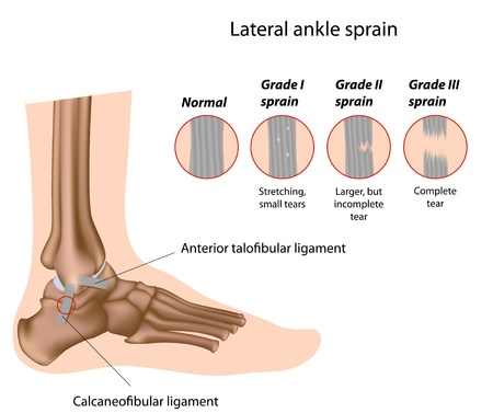 Ankle sprain grading Illustration