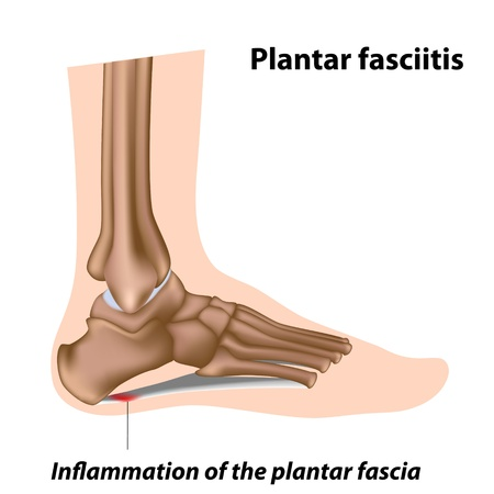 Plantar fasciitis, foot problem Vector