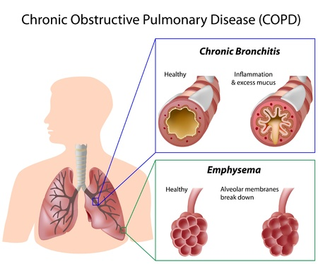 emphysema: Chronic obstructive pulmonary disease