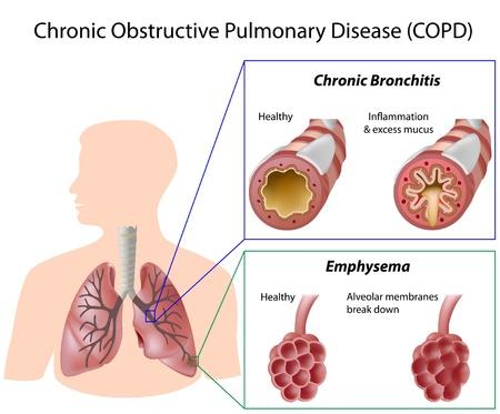 alveolos pulmonares: Enfermedad pulmonar obstructiva crónica