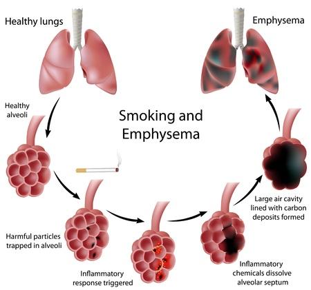 persona fumando: El tabaquismo y enfisema Vectores