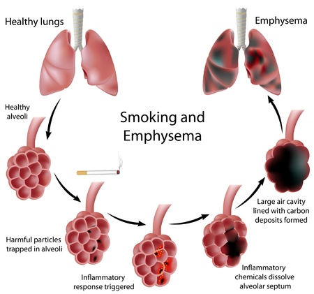 Smoking and Emphysema Vector