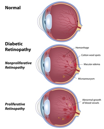 Diabetic retinopathy, eye disease due to diabetes Illustration