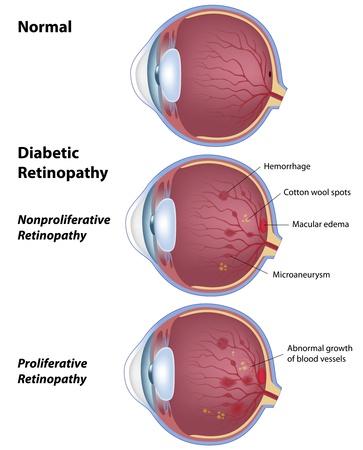 vasos sanguineos: La retinopatía diabética, enfermedad de los ojos debido a la diabetes Vectores