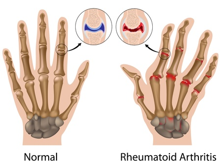 erosion: Rheumatoid arthritis of finger joints of the hand