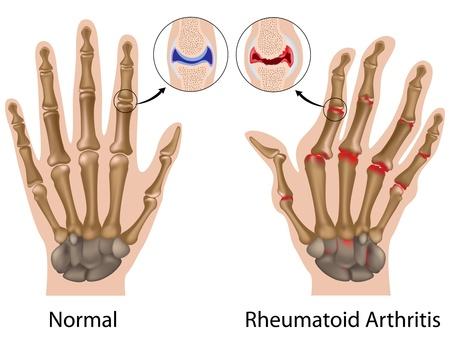 Rheumatoide Arthritis der Fingergelenke der Hand Vektorgrafik