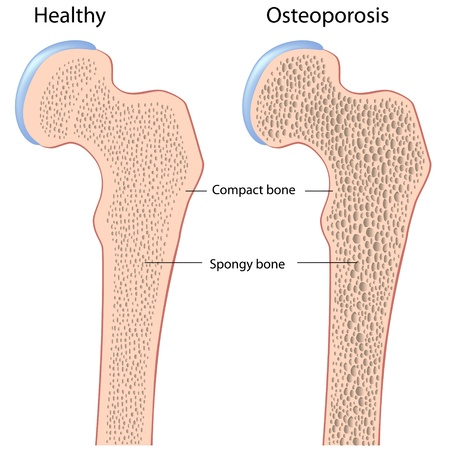 Osteoporosis of hip bone (femur)