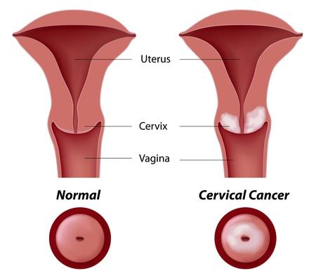 ovaire: Cancer du col de l'utérus