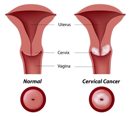 squamous: Cervical cancer