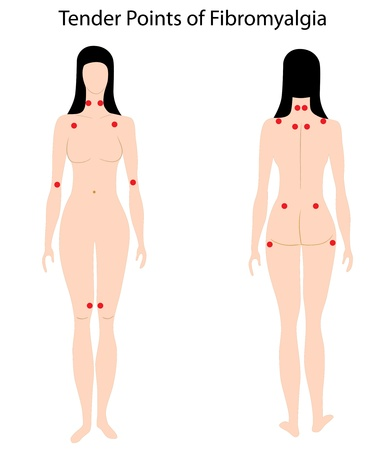 Tender points of Fibromyalgia