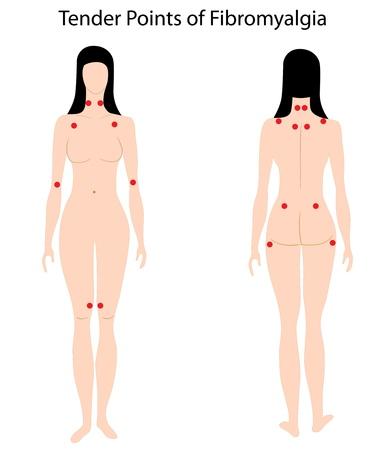 tierno: Los puntos sensibles de la fibromialgia Vectores
