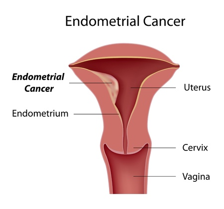 woman vagina: Endometrial cancer Illustration