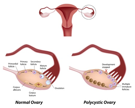Normal ovary and Polycystic ovary syndrome Illustration