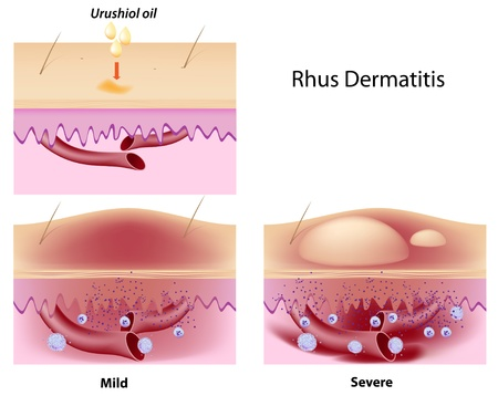 Urushiol oil induced contact dermatitis Vector