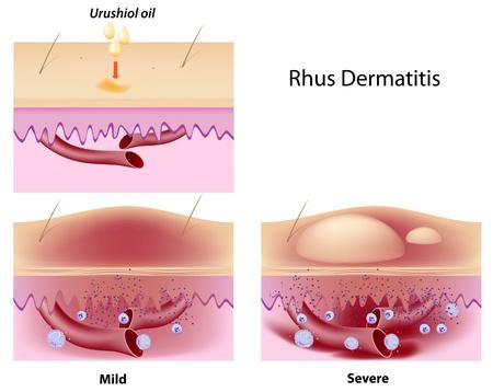 dermatologo: Urushiol olio indotta da dermatite da contatto Vettoriali
