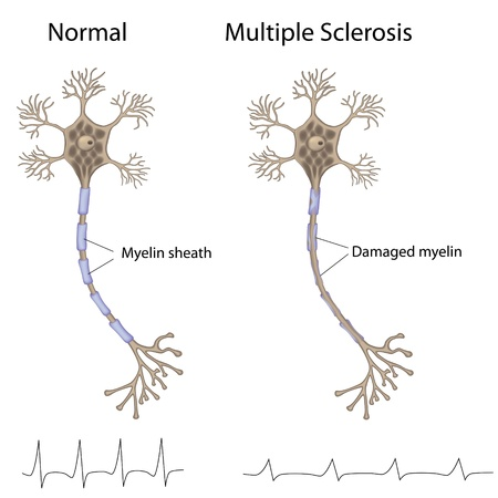 many people: Multiple sclerosis