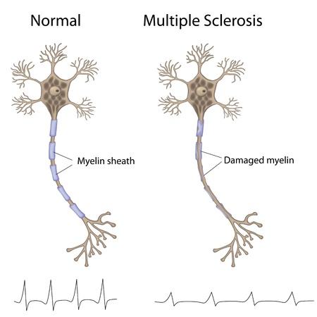 nervenzelle: Multiple Sklerose Illustration
