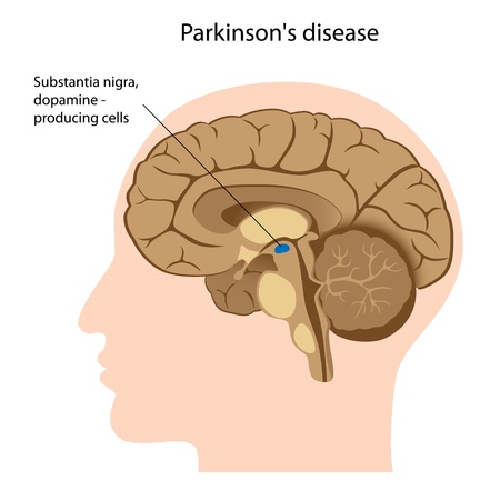 median: Parkinson disease Illustration