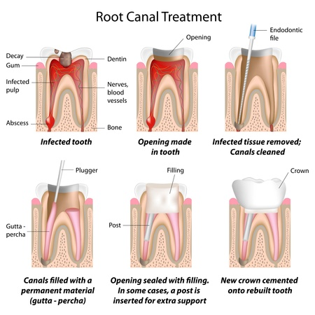 tooth root: Root canal treatment