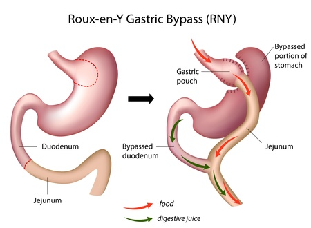 Roux-en-Y Gastric Bypass (RNY) Weight Loss Surgery  Vector