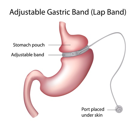Gastric Band  Weight Loss Surgery  Vector