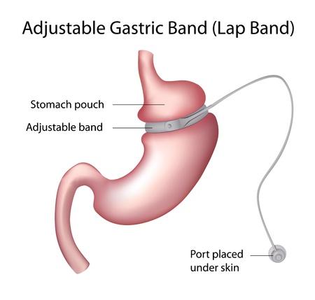 stoma: Gastrico fascia di peso Chirurgia di perdita Vettoriali