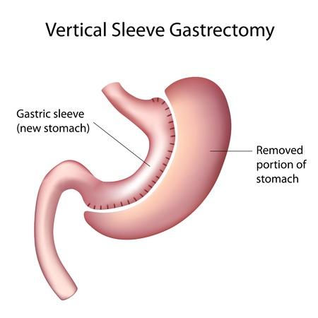 Vertical gastrectomía en manga (VSG), cirugía para perder peso Foto de archivo - 12176784