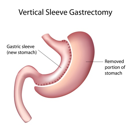 fundus of stomach: Vertical Sleeve Gastrectomy (VSG), Weight Loss Surgery
