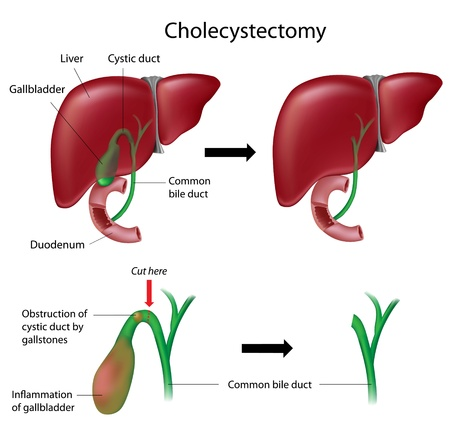 cystic duct: Cholecystectomy gallbladder removal surgery