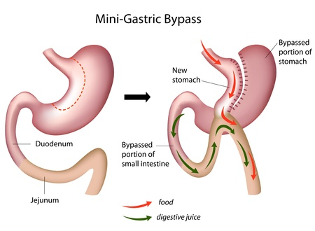 Mini gastric bypass surgery Illustration