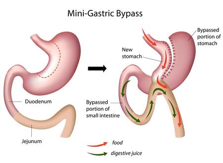 Mini maag-bypass operatie