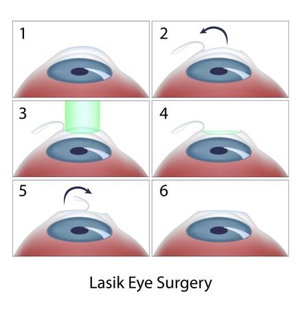 miopia: Lasik procedura di chirurgia dell'occhio Vettoriali