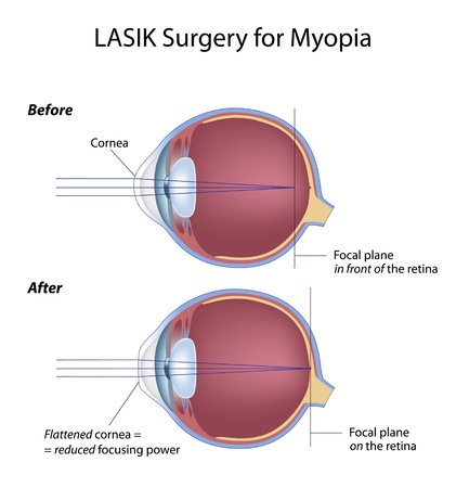 myopia: Lasik eye surgery for myopia Illustration