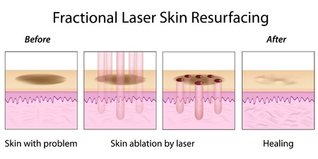 Fractional Laser Skin Resurfacing Vector