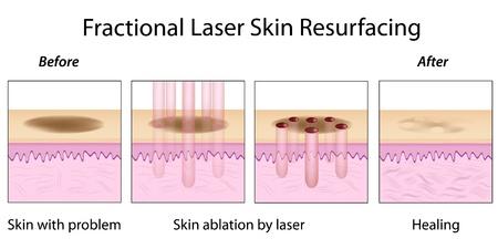 Fractional remodelage cutané au laser