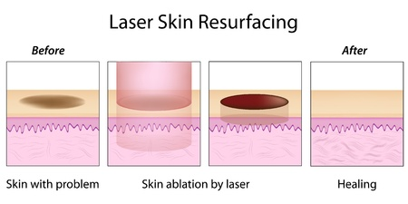 Laser Skin Resurfacing Stock Vector - 12176790
