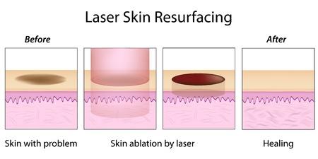 laser surgery: Laser Skin Resurfacing