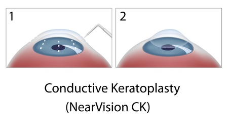 Conductive Keratoplasty eye surgery Vector