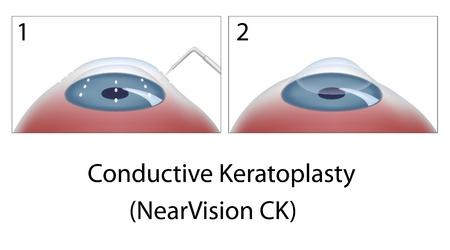 hyperopia: Keratoplasty conduttivo chirurgia oculare