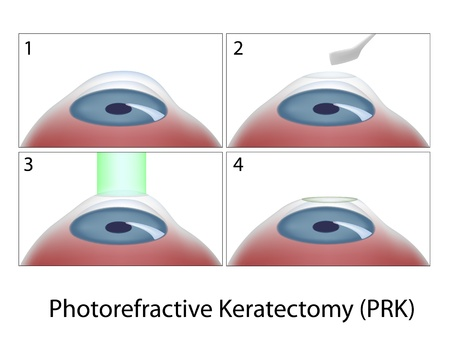 Photorefractive Keratectomy (PRK) eye surgery Vector
