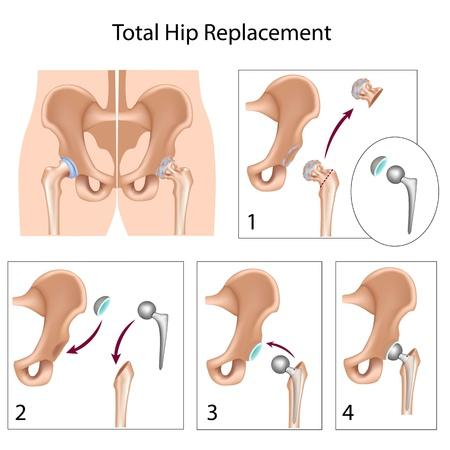 osteoarthritis: La cirug�a de reemplazo de cadera Vectores