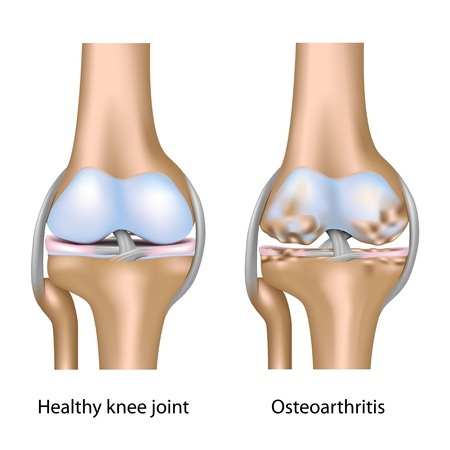 artrosis: La osteoartritis de la articulación de la rodilla Vectores