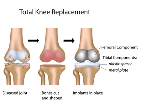 knee joint: Total knee replacement surgery