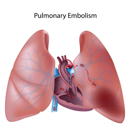 Pulmonary embolism Stock Vector - 12176799