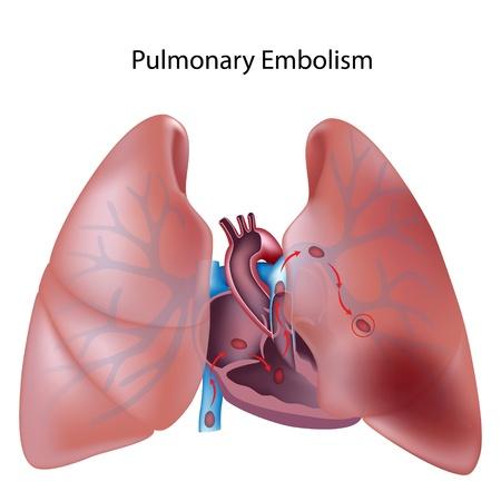La embolia pulmonar