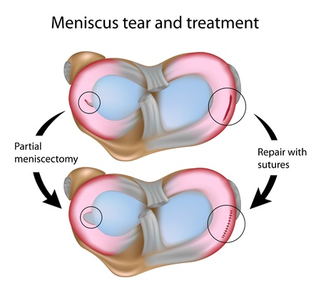 Meniscus tear and surgery treatment Vector
