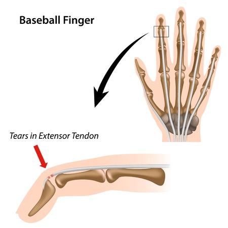 fractura: El dedo de beisbolista lesiones deportivas