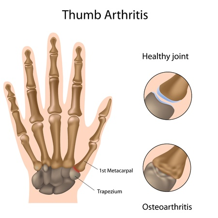 spurring: Base of thumb arthritis